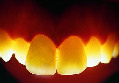 Коронка из циркония (оксида) на просвет на переднем зубе – фотография